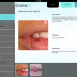 Review: OralmeDX o cómo mejorar el diagnóstico de las lesiones orales con un iPad
