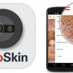 Nace FotoSkin, una aplicación que ayuda a prevenir el cáncer de piel