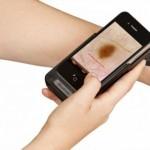 DermoScreen, una app para comprobar tu riesgo de tener cáncer de piel