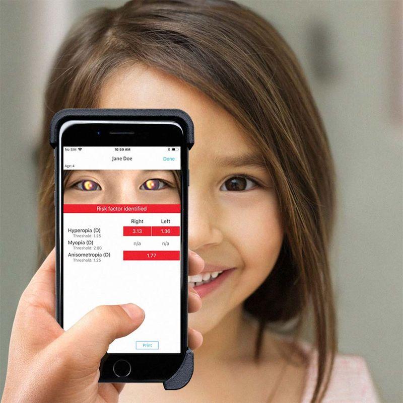 Una app permite detectar problemas de visión y enfermedades oculares en niños