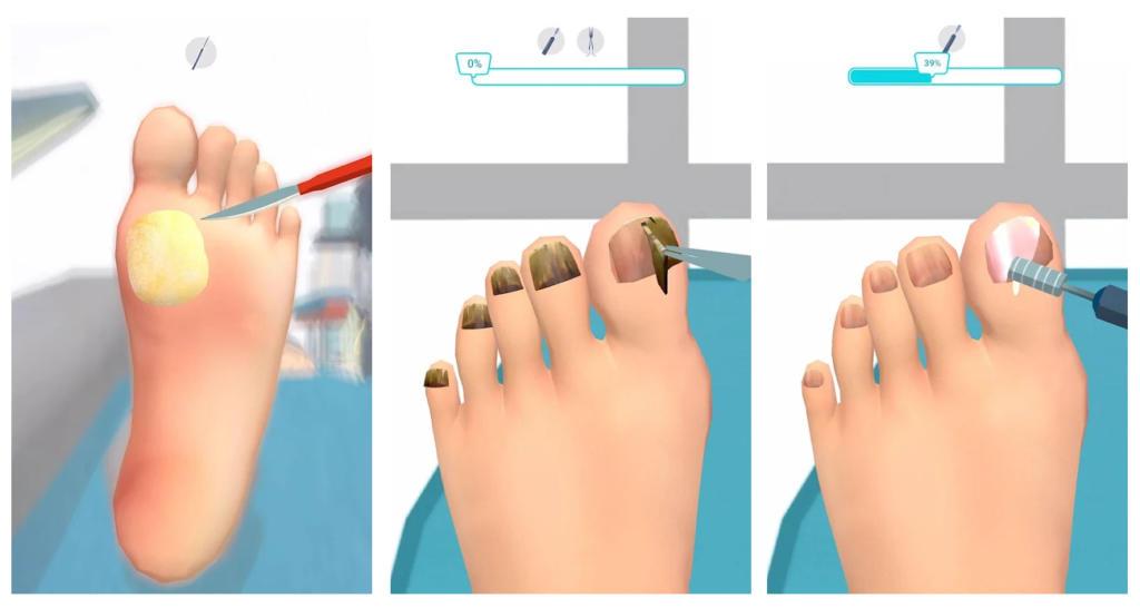 Foot Clinic- ASMR Feet Care, el juego del podólogo que triunfa en Google Play