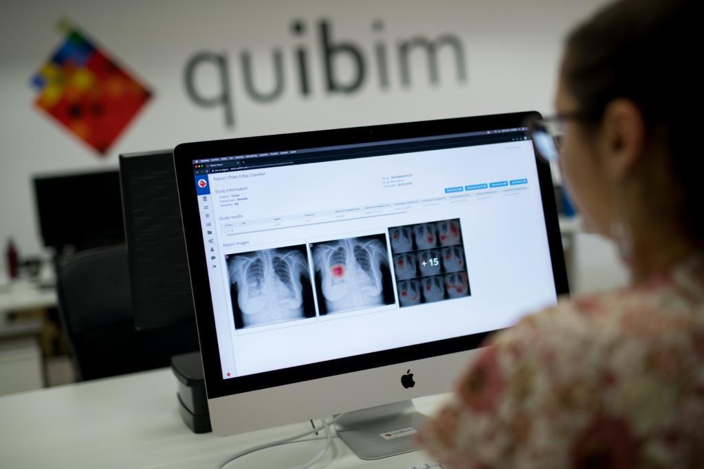 La startup médica Quibim cierra una ronda de 8 millones de euros